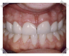 cosmetic dentistry after chipped anterior teeth
