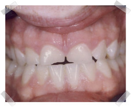 cosmetic dentistry before chipped anterior teeth