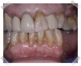 cosmetic dentistry before aged dentition