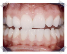 cosmetic dentistry after dark front tooth