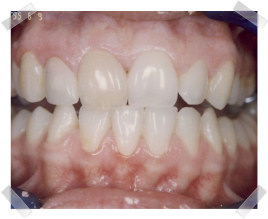 cosmetic dentistry before dark front tooth