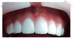 cosmetic dentistry after porcelain veneers