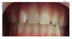 cosmetic dentistry before porcelain veneers