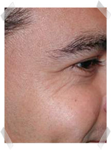 wrinkle treatment before eye smoothing