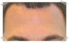 wrinkle treatment after forehead smoothing