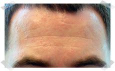 wrinkle treatment before forehead smoothing